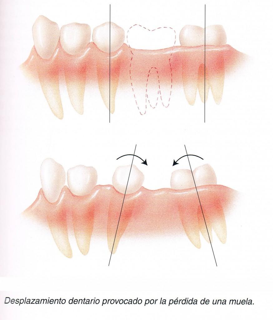 Pérdida accidental de un diente o muela