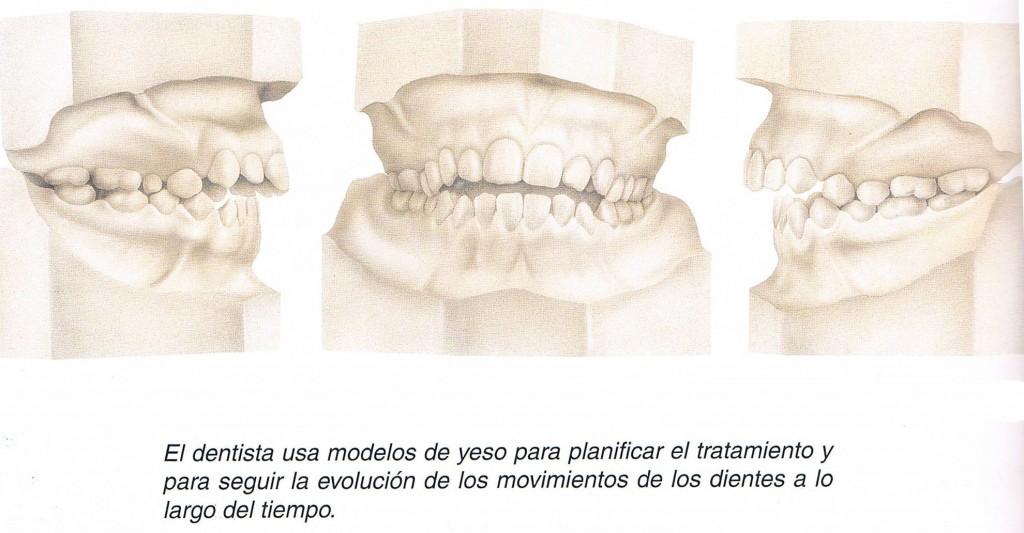 Detalles de la boca