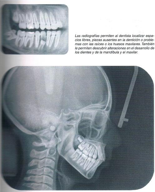 Estudio detallado de la boca