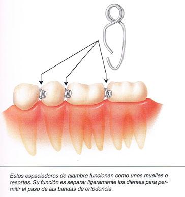Espacio para la ortodoncia