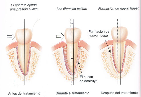 Cómo funcionan los aparatos de ortodoncia