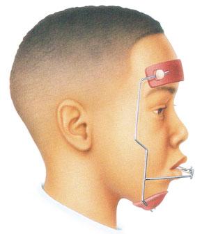 Máscara facial y la mentonera